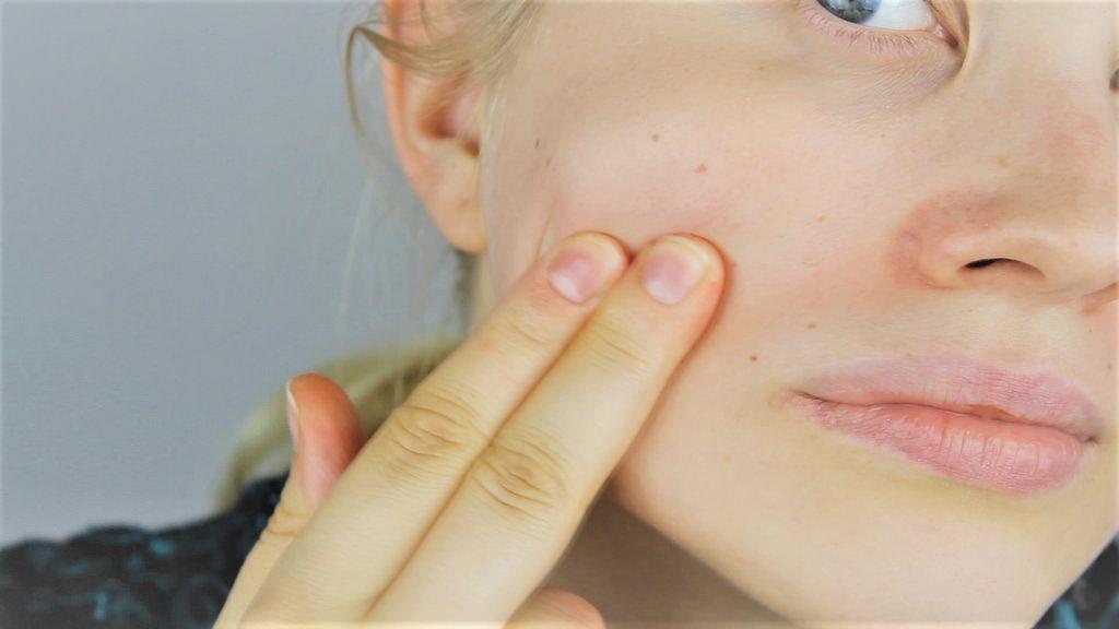 peau agressées