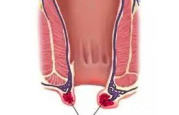 Apparition d'hémorroïdes externes : comment réagir ?